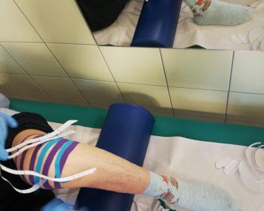 Kolano seniorki oklejone taśmami kinezjologicznymi działającymi przeciwobrzękowo